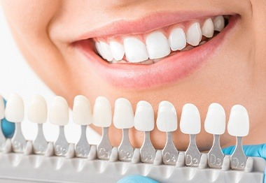 Smile compared to porcelain veneer shade chart
