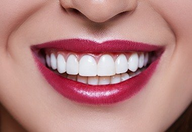 Smile with flawless metal-free dental restoration