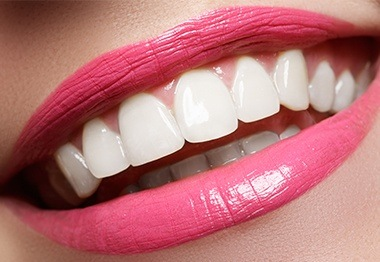 Smile after cosmetic gum recontouring