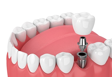 3D illustration of dental implant, abutment, and crown