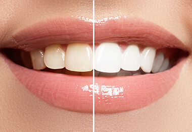 A before and after image of a person's smile after undergoing teeth whitening
