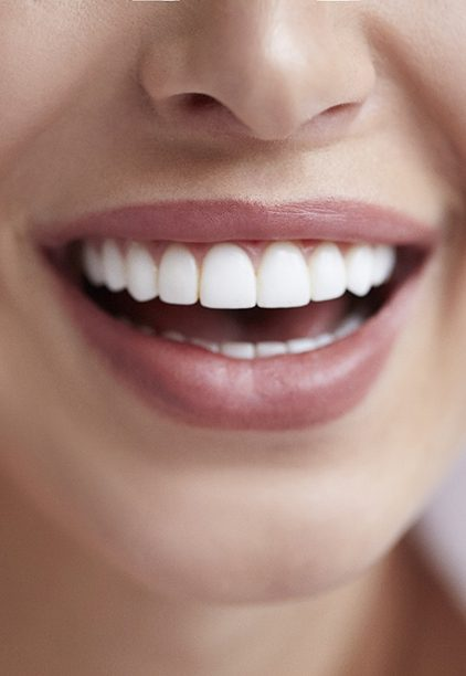 Woman smiling with veneers in Hoboken